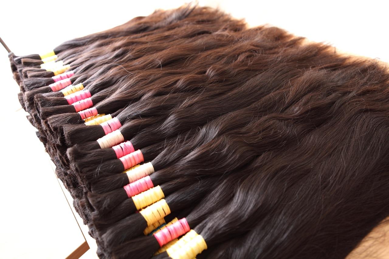 Un negocio muy peludo | Alopecia